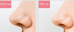Perfect Blackhead Remover Before-After