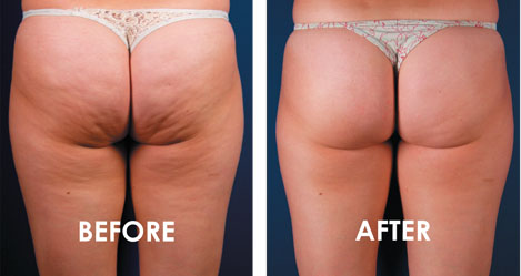 SculptSkin Cellulite before and after