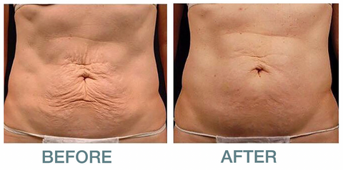 sculptskin Lift before and after cavitation and radio frequency results