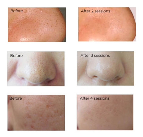 Lux Fem Microdermabrasion blackhead remover facial kit visible results, before and after pictures of customers from 1 -to 4 treatments