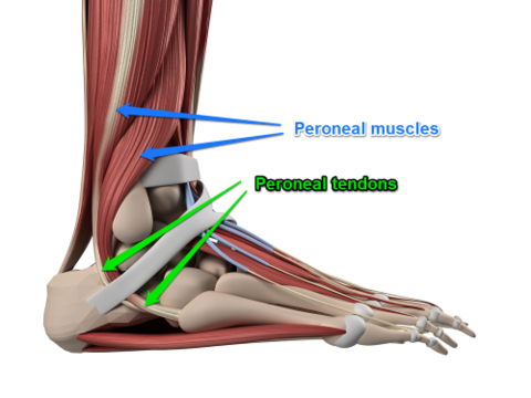 Peroneal tendonitis treatment: Do arch support insoles have a role?