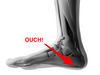 So You Have Heel Pain - Are Orthotic Insoles Really The Answer?