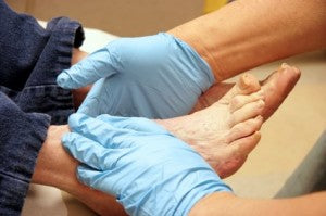 stress-fracture-foot-symtoms