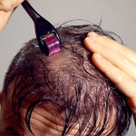 HAIRE Follicle Stimulator