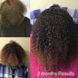 GS Hair Growth System