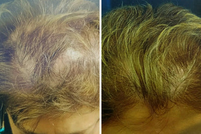 Alopecia: Before & After