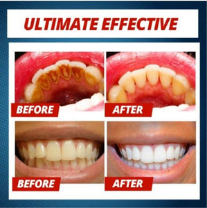 INTENSIVE Stain Removal Whitening Toothpaste 2