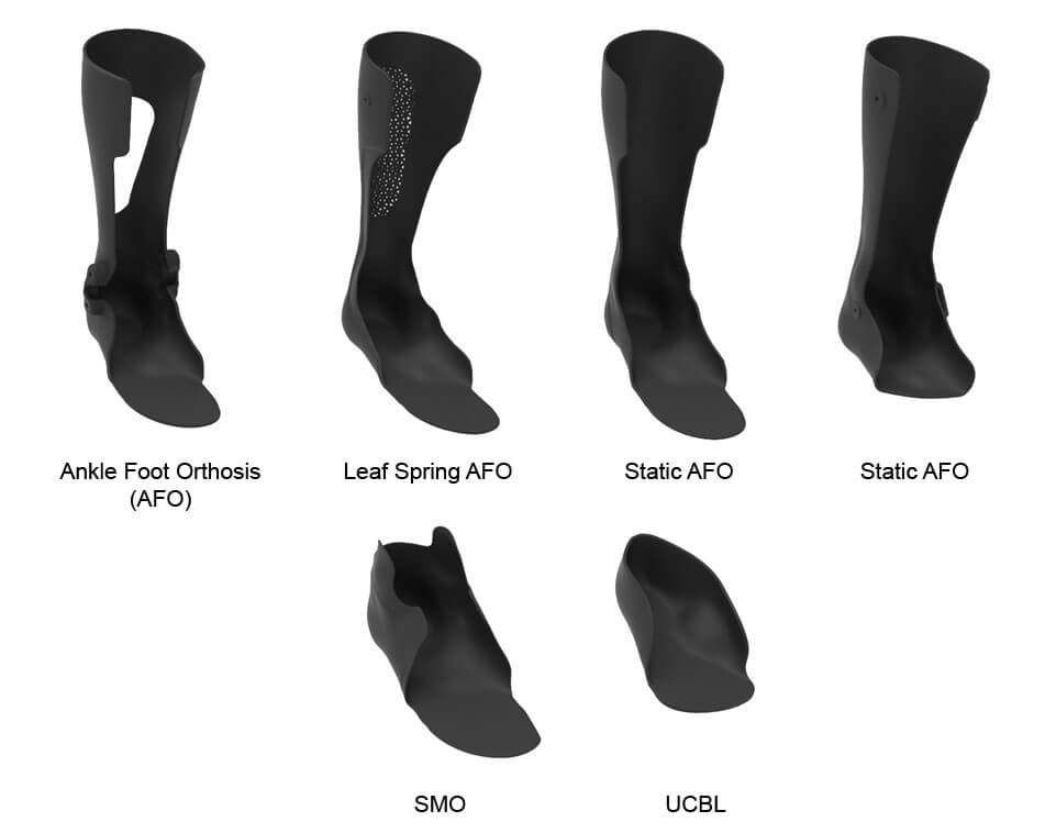 Examples of 3D Printed Orthoses