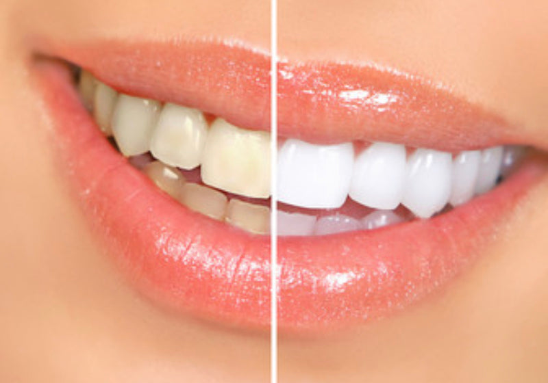 Teeth whitening - Beauty Comes True Academy