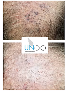 Undo Non-Laser Tattoo Removal Hands-On Training Deposit