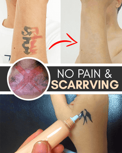 Tattoo & Scar Removal Cream