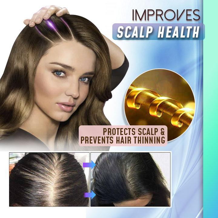 ScalpRevive™ Hair Regrowth Essence Spray