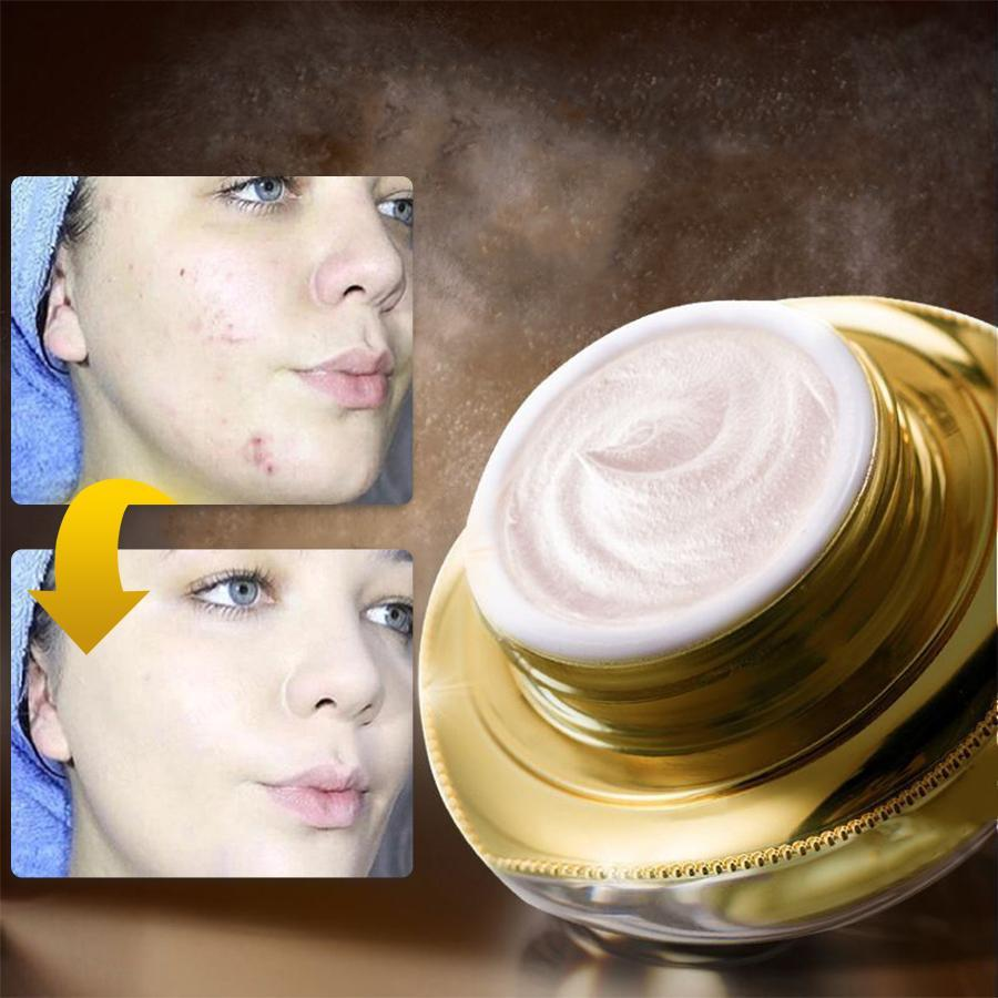 Rejuvenating Niacinamide Cream