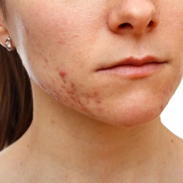 Treating Acne Naturally: The New Regime