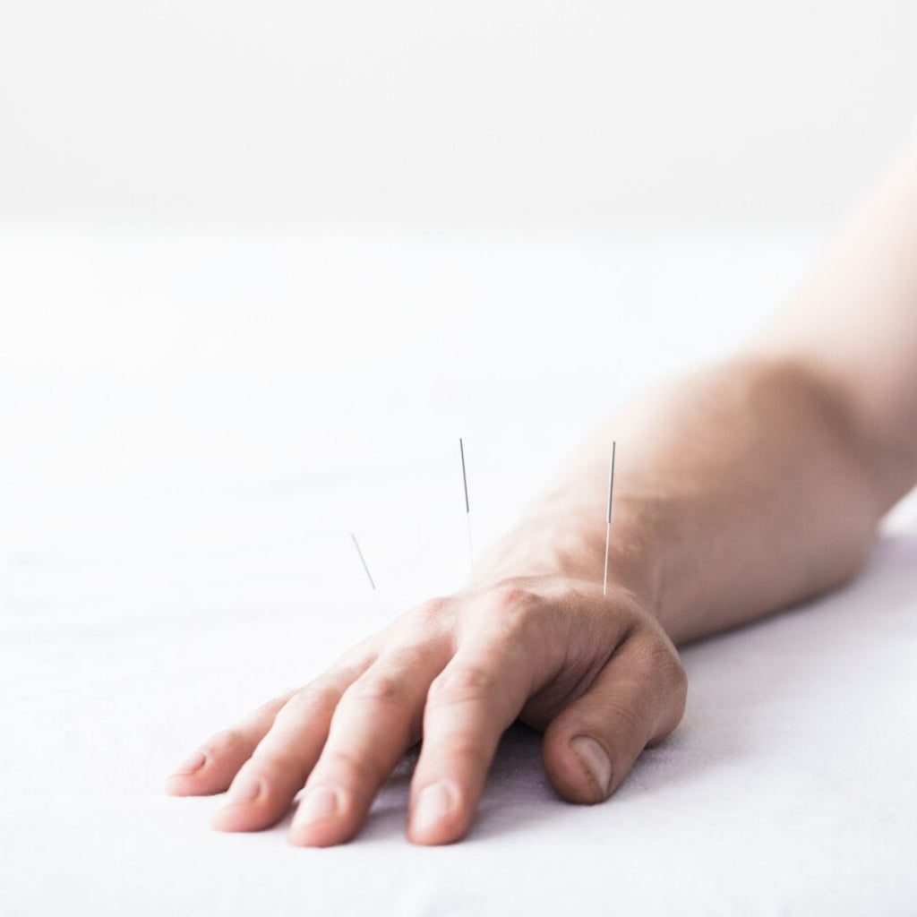 Acupuncture: let's talk about... acupuncture for male fertility