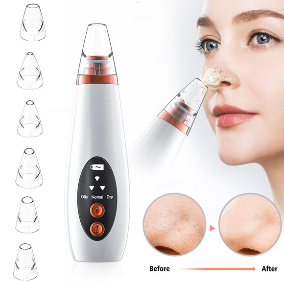 Angels 2020 USB Rechargeable Blackhead Remover and Beautification Vacuum