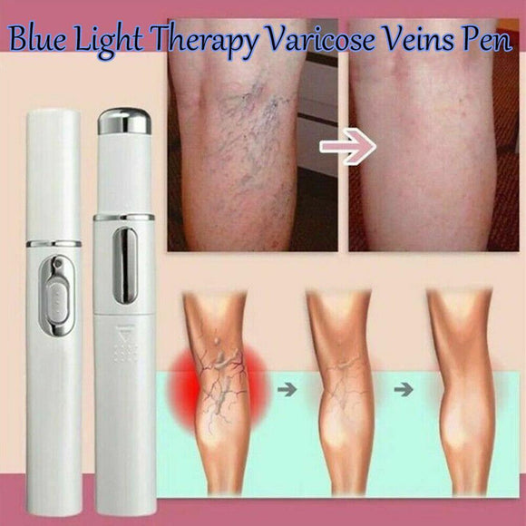 Angels Miracle Cure for Varicose Veins