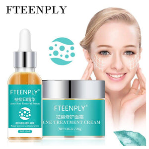 FTEENPLY Acne Treatment Face Serum Scar Remove Face Cream Fading Acne Marks Reparing Nourishing Refining Pores Essence Skin Care - SaturnLoop Shops Sales