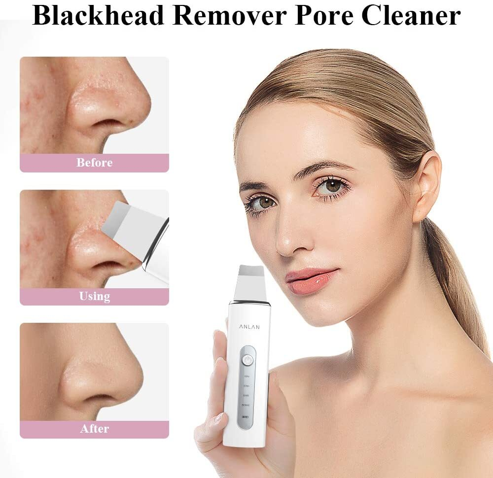 Ion Blackhead Scrubber for cleaning deep pores and skin rejuvenation.