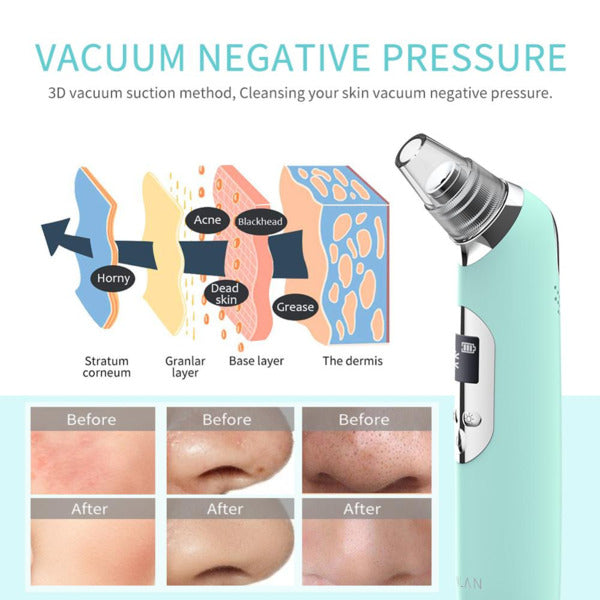 Hot Cold Blackhead Remover open the pores to clean and close the pores.