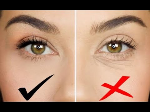 How to remove bags under the eyes in only 1 natural way?