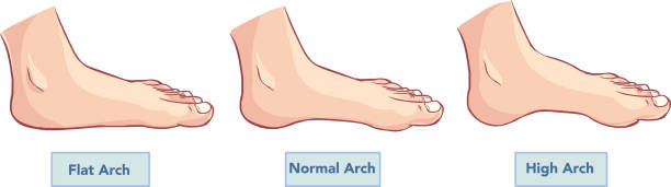 normal arch and abnormal arch
