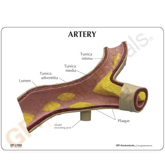 Artery Model with Cut-Away