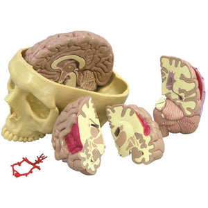 Brain Model and Partial Skull