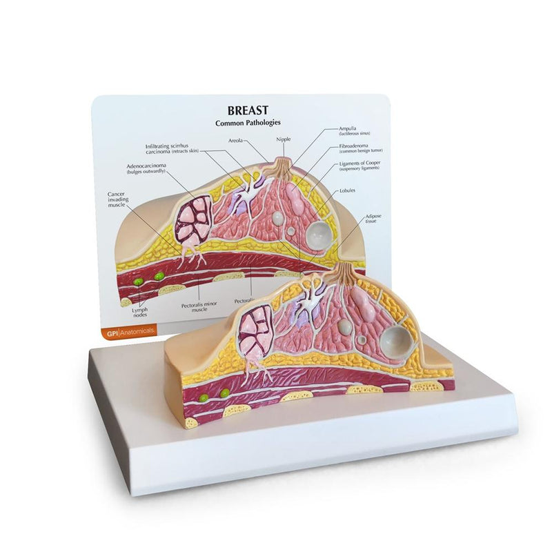 Breast Cross Section Model with Pathologies