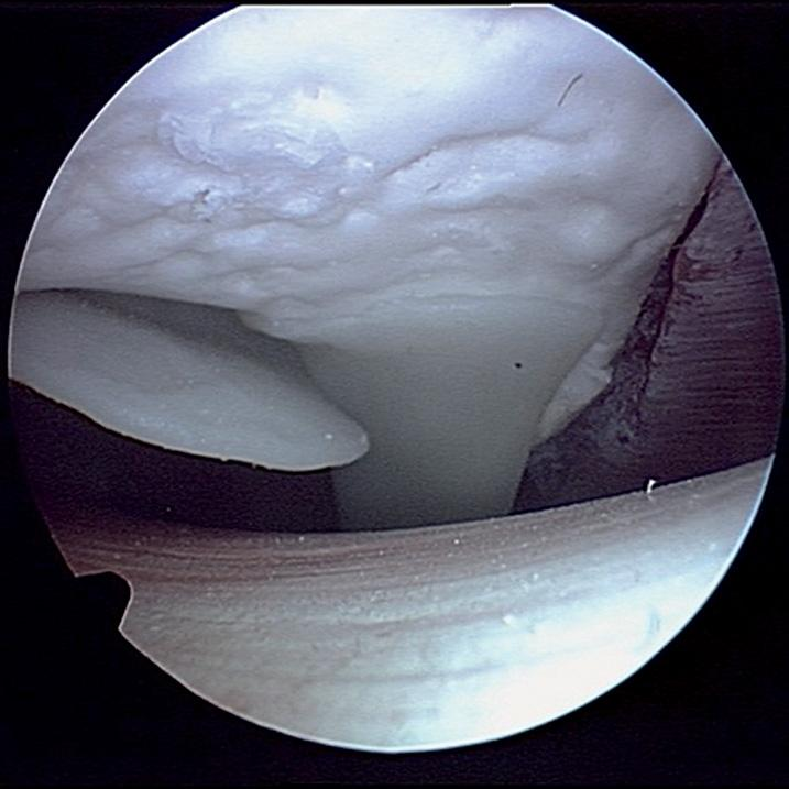 CLA Arthroscopy Model of Shoulder Joint