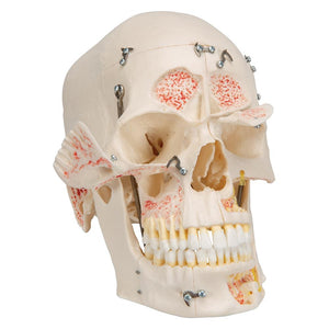 Deluxe Human Demonstration Dental Skull Model, 10 part - Includes 3B Smart Anatomy