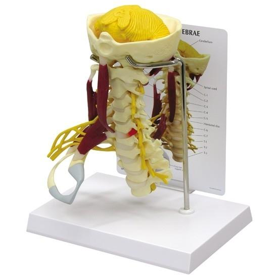 Deluxe Muscled Cervical Spinal Model
