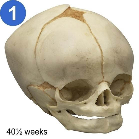 Development of Fetal Skull Models, Set of 12