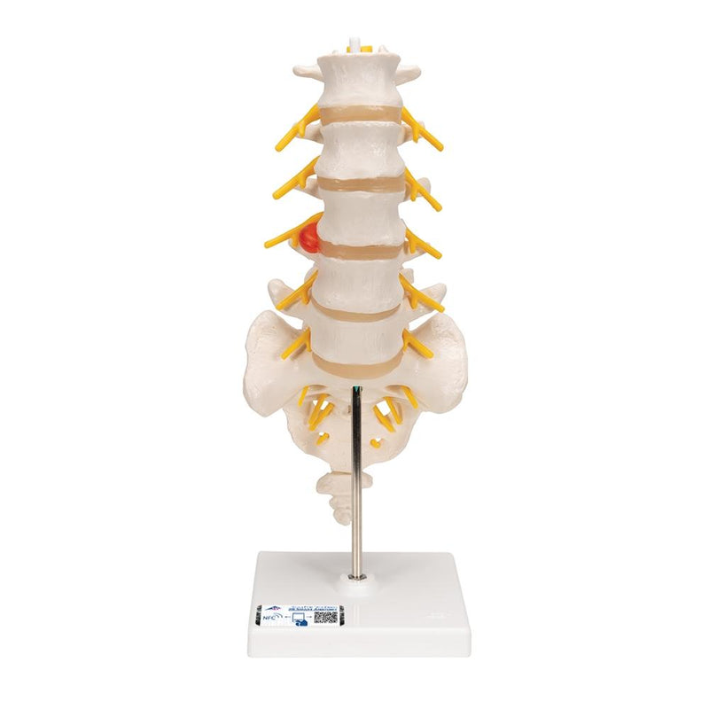 Lumbar Spinal Column with Dorso-lateral Prolapsed Intervertebral Disc - Includes 3B Smart Anatomy