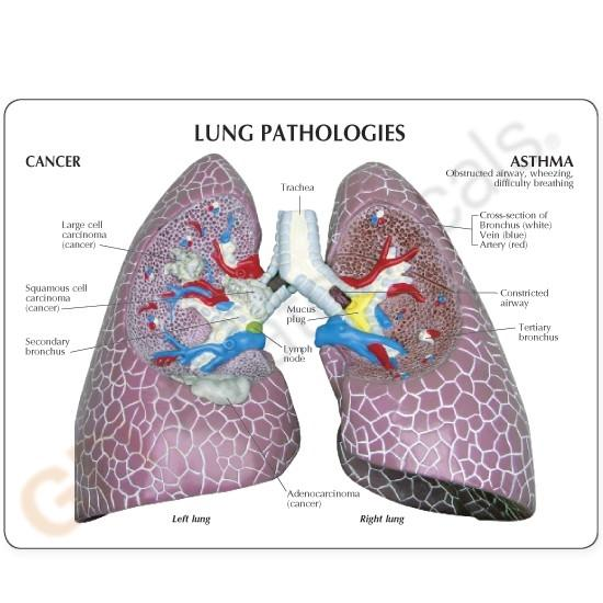 Lung Set Model with Pathologies