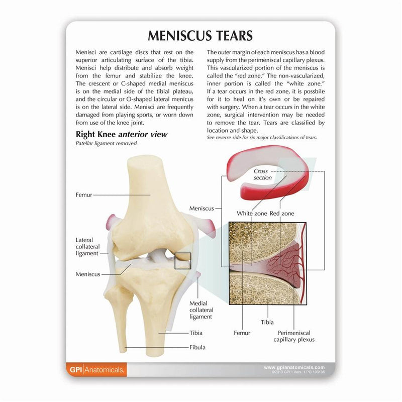 Meniscus Tears Model
