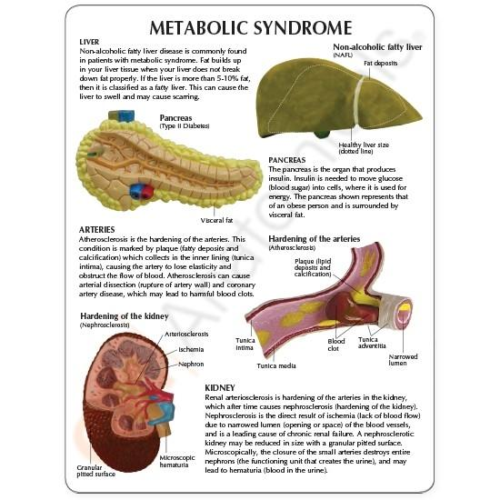 Metabolic Syndrome Model