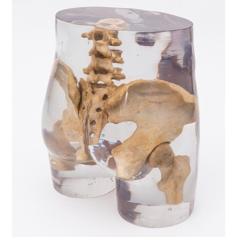 X-Ray Phantom Pelvis, Transparent