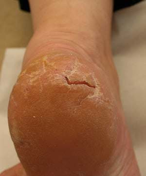 Heel fissure complex procedure-from £40