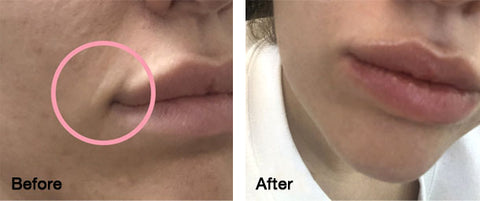 DERMA ROLLING BEFORE AFTER SKIN NEEDLING MICRO NEEDLING