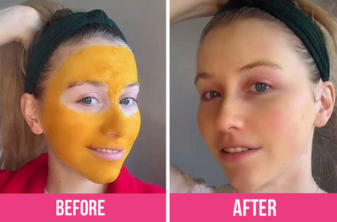 turmeric-mask-before-after
