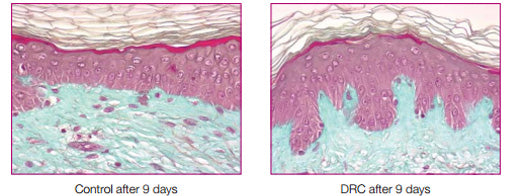 ACTIONS OF THE REDENSITY DERMO-RESTRUCTURING COMPLEX ON THE DERMIS