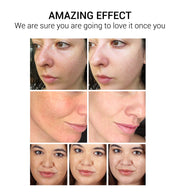 Facial Cream Repair Fade Freckles Remove Dark Spots