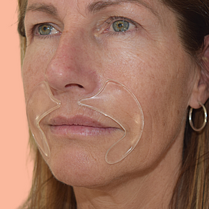 Mouth Wrinkle Smoothing Masks