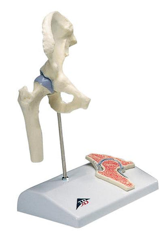3B Scientific Anatomical Model - mini hip joint with cross section of bone on base - Includes 3B Smart Anatomy