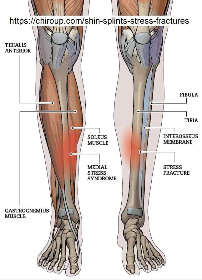 Fix Your Shin Splints (Medial Tibial Stress Syndrome) By Seth Donelson (DPT)