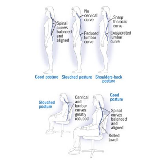 How your spine looks in good and slouched postures