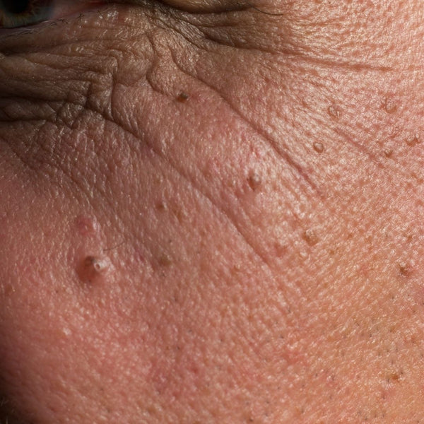 How To Prevent Age Spots