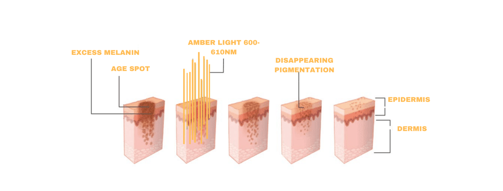 Amber Light Therapy