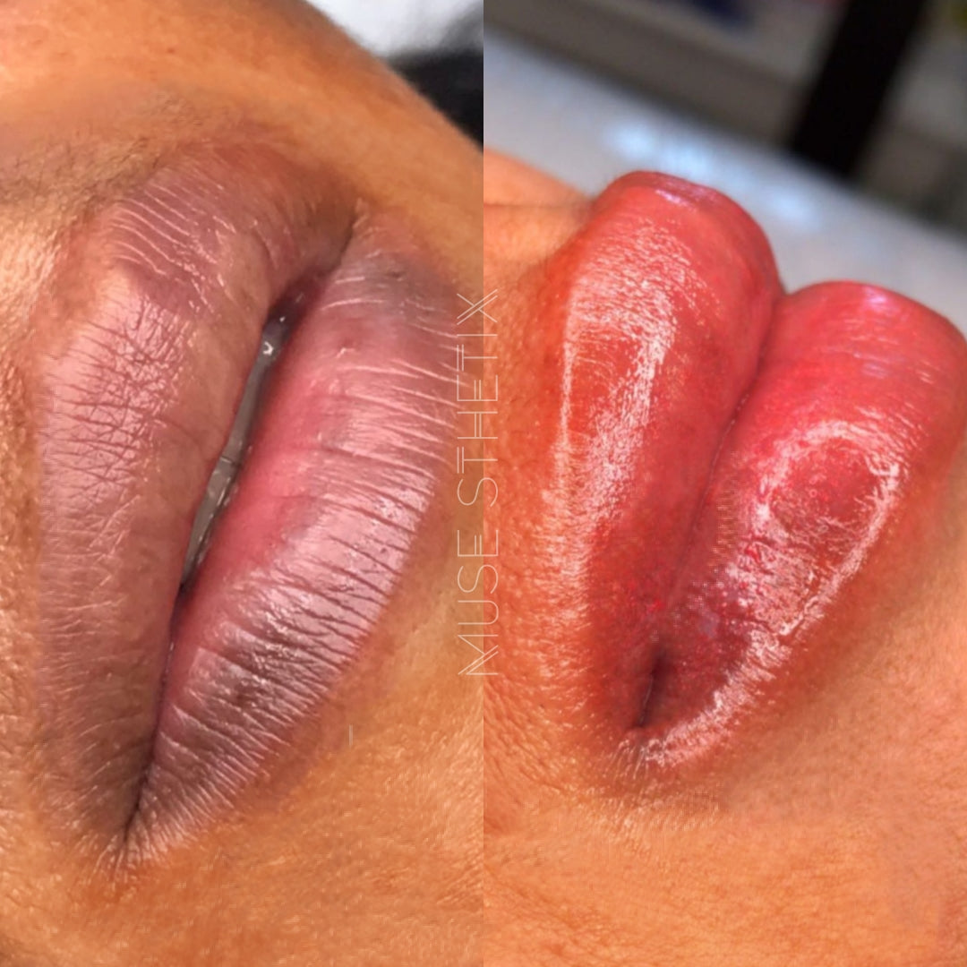 Melanin Lip Correction